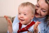 Otrok z Downovim sindromom