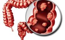 Kolorektalni rak