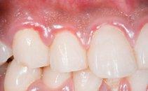 Vnete dlesni