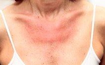 Alergija na sonce