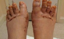 deformirana stopala - 11