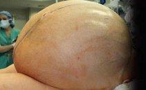 Tumor jajčnikov