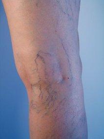 Krčne žile