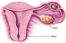 Zunajmaternična nosečnost