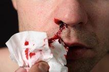 krvavenje iz nosu