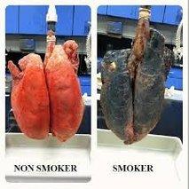 Pljuča kadilca