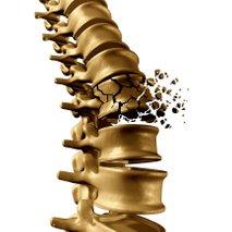 Zlom vretenca