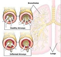 Bronhiolitis