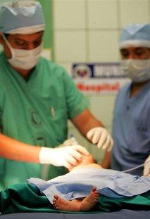 Operacija dojenčka