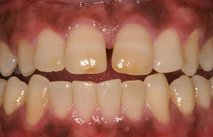 Vnetje dlesni
