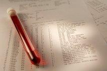 krvne preiskave
