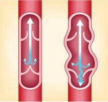 Krčne žile - 6
