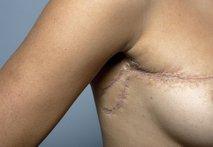 Rekonstrukcija dojke