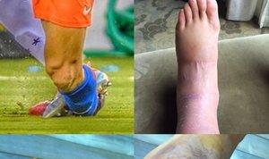 poškodba nogometaša