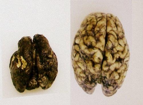 Primerjava možgan