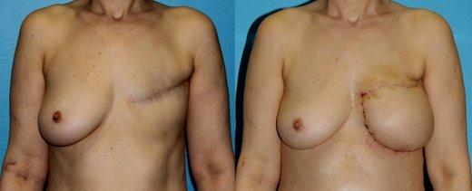 3D kalup za rekonstrukcijo dojke - 1