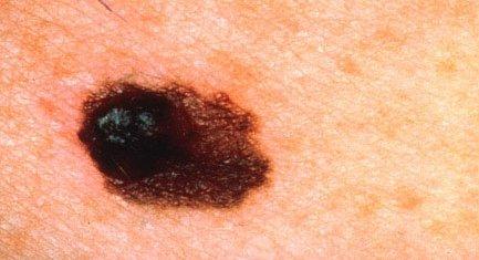 melanom2