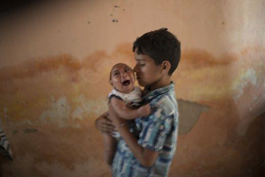 Otrok okužen z virusom Zika