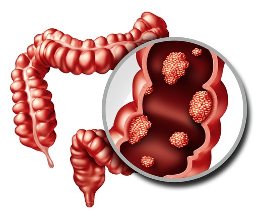Rak na debelem črevesu