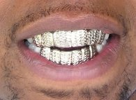 Zlati zobi