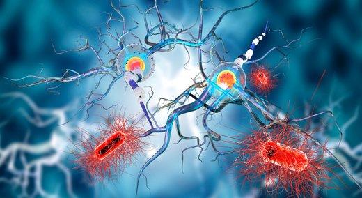 Multipla skleroza