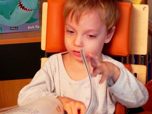 Dvojčka scerebralno paralizo