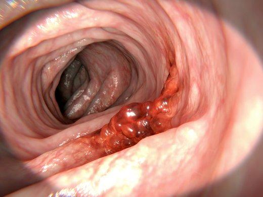 Rak debelega črevesa