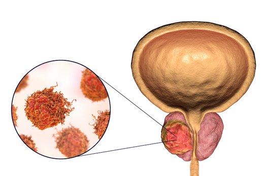 Rak prostate