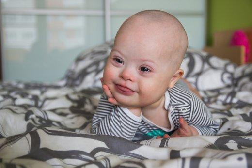 dojenček z Downovim sindromom