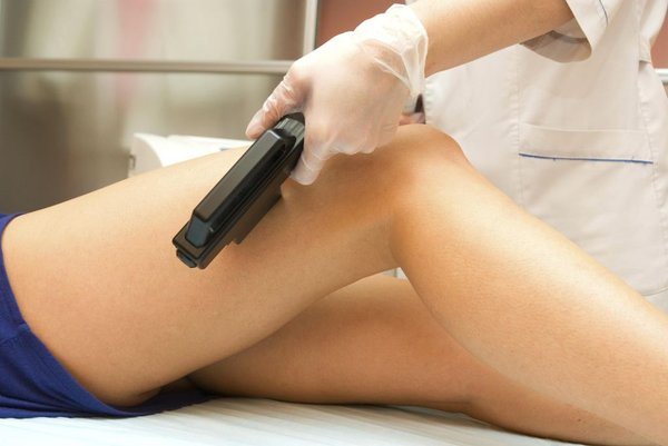 Laserska depilacija