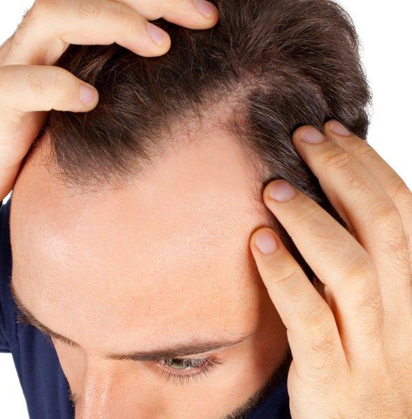 moški in izpadanje las