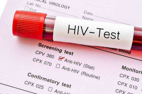 Testiranje za hiv