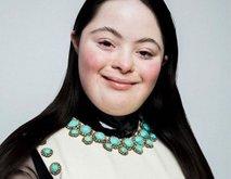Dekle z Downovim sindromom postalo obraz Guccija