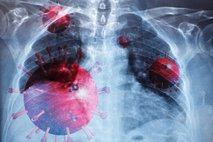 Obdukcije pokojnikov s covid-19 pri nas: pljuča močno prizadeta in zelo kužna