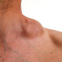 Prostate Hyperplasia Assembly Antibiotikumok receptjei prosztatitis