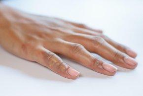 Prsti lahko razkrijejo spolno prenosljivo bolezen