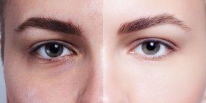 Kaj se dejansko dogaja z obrazom v procesu staranja?
