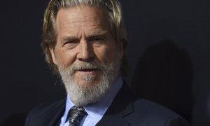Jeff Bridges zbolel za rakom