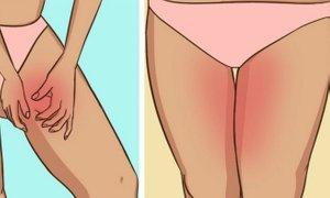 Preprosta rešitev za neprijetno drgnjenje kože med nogami