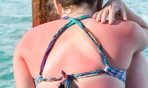 Kaj se dogaja z našo kožo, ko smo izpostavljeni žgočemu soncu?
