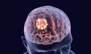 Algoritem krvni sliki pripiše 10 verjetnih bolezenskih stanj