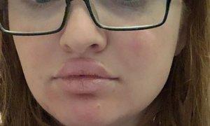 Za polnejše ustnice se mažejo s super lepilom