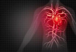 Pogosta navada lahko poslabša izid infarkta