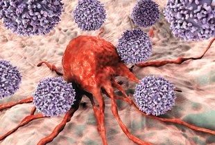 Razvada, ki poslabša zdravljenje raka