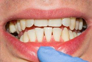5 najpogostejših vprašanj zobozdravniku