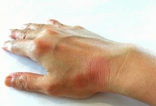 Kakšni so simptomi lupusa in kako ga zdravimo?