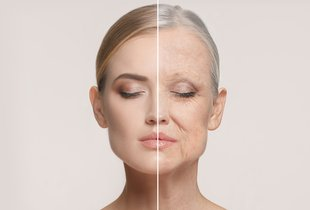 Najsodobnejša metoda pomlajevanja obraza