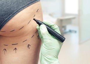 Maščobo se najpogosteje uporablja za oblikovanje zadnjice