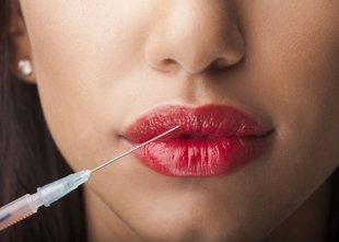 Polnila so trenutno največji trend v estetski medicini