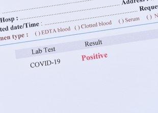 Ponovno okužbo do zdaj zanesljivo potrdili pri 46 osebah